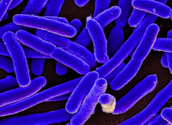 Deadly Bacteria can be created by Warmer Planet